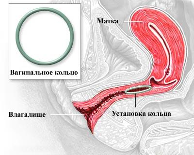 Противозачаточное кольцо НоваРинг