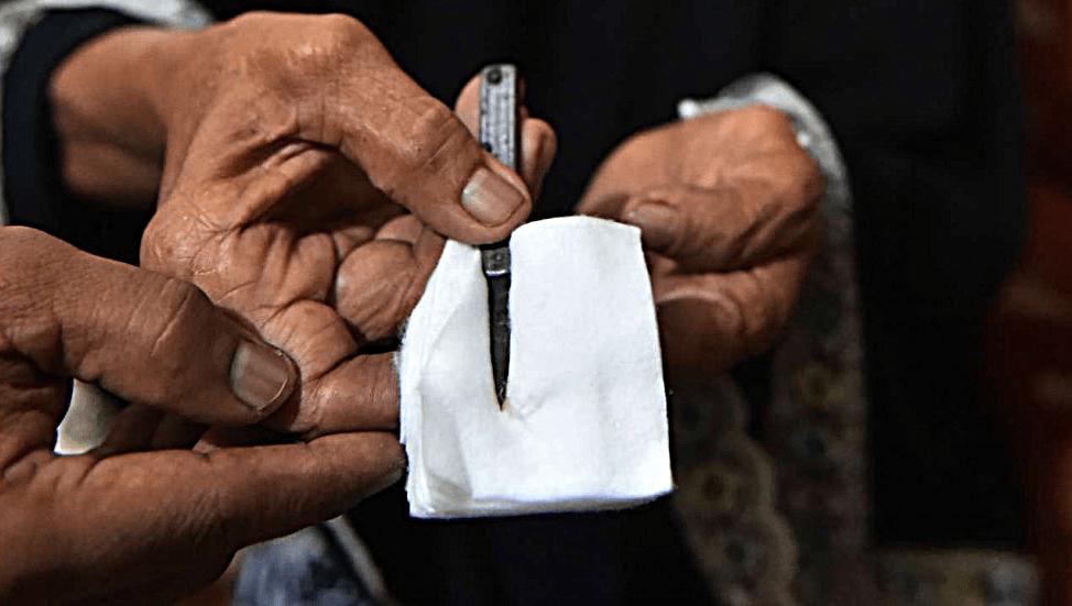 Женское половое обрезание